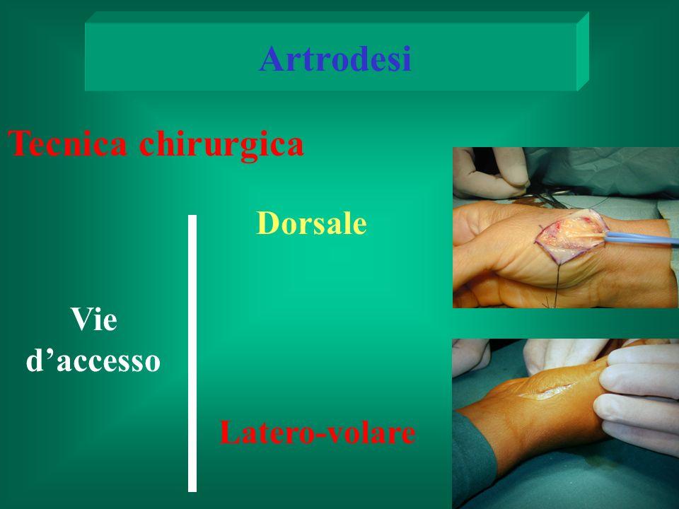 Vie daccesso Artrodesi Tecnica chirurgica Latero-volare Dorsale