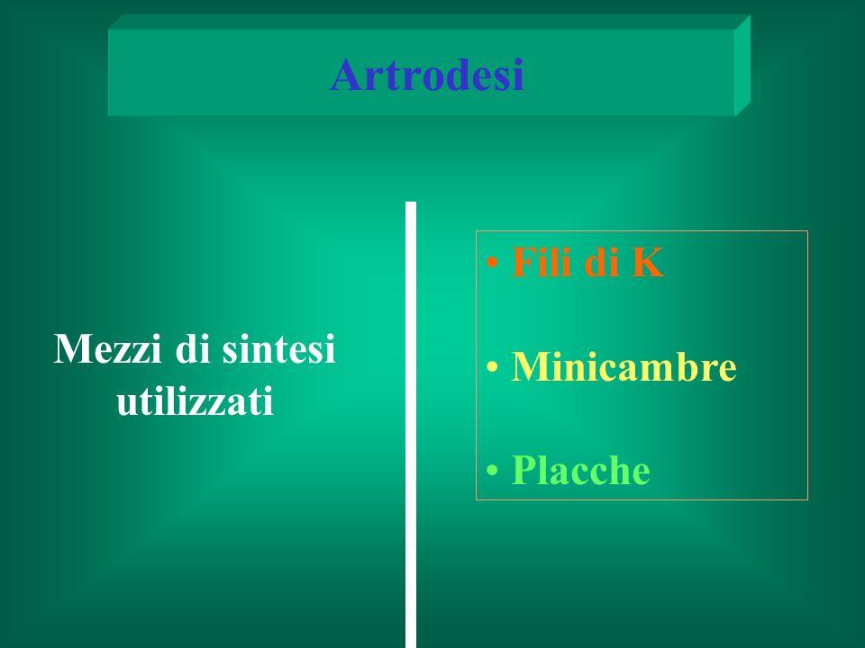 Mezzi di sintesi utilizzati Artrodesi Fili di K Minicambre Placche