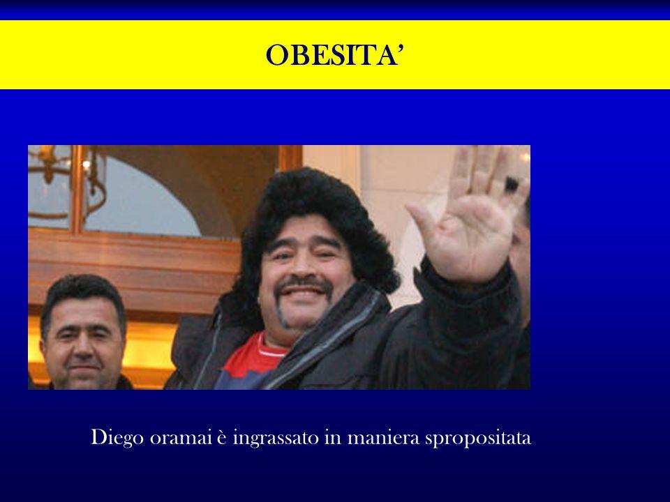 OBESITA Diego oramai è ingrassato in maniera spropositata