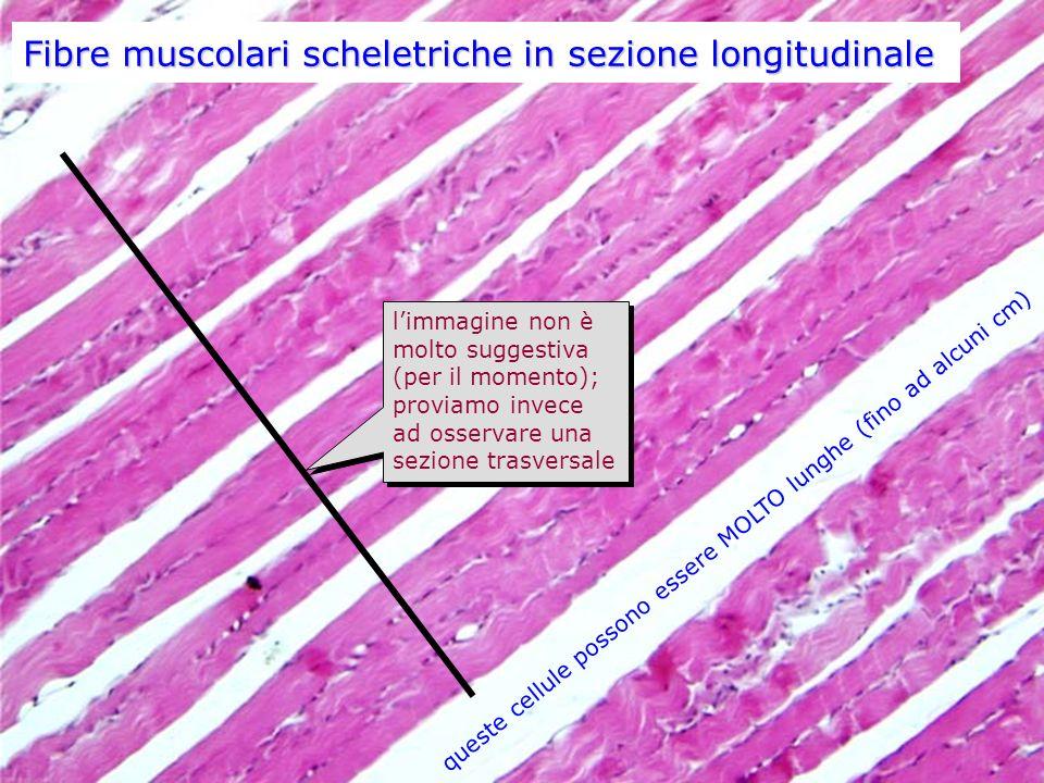 Fibre muscolari scheletriche in sezione longitudinale queste cellule possono essere MOLTO lunghe (fino ad alcuni cm) limmagine non è molto suggestiva (per il momento); proviamo invece ad osservare una sezione trasversale limmagine non è molto suggestiva (per il momento); proviamo invece ad osservare una sezione trasversale