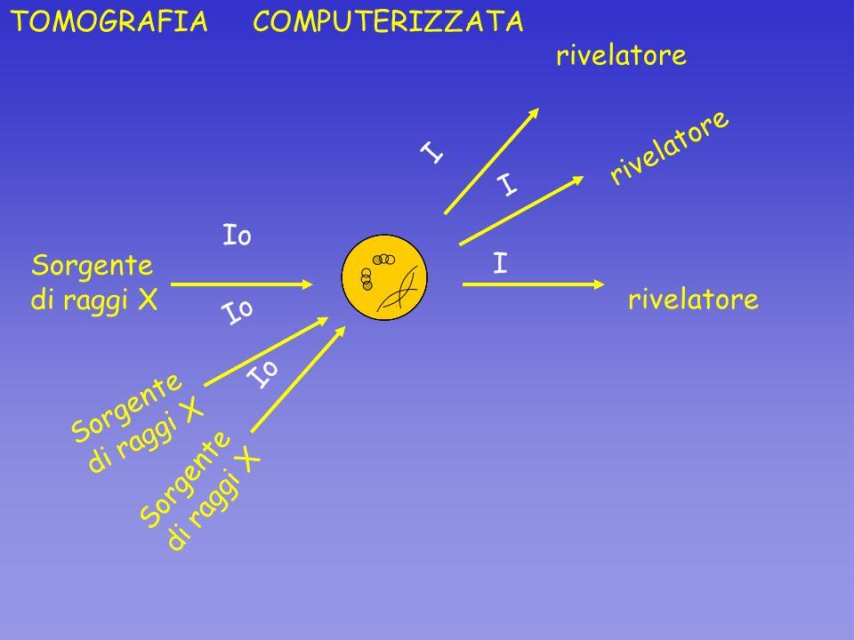 TOMOGRAFIA COMPUTERIZZATA Sorgente di raggi X rivelatore Io I Sorgente di raggi X rivelatore I Sorgente di raggi X rivelatore Io I