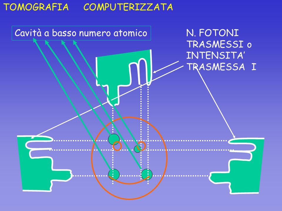 TOMOGRAFIA COMPUTERIZZATA N. FOTONI TRASMESSI o INTENSITA TRASMESSA I Cavità a basso numero atomico