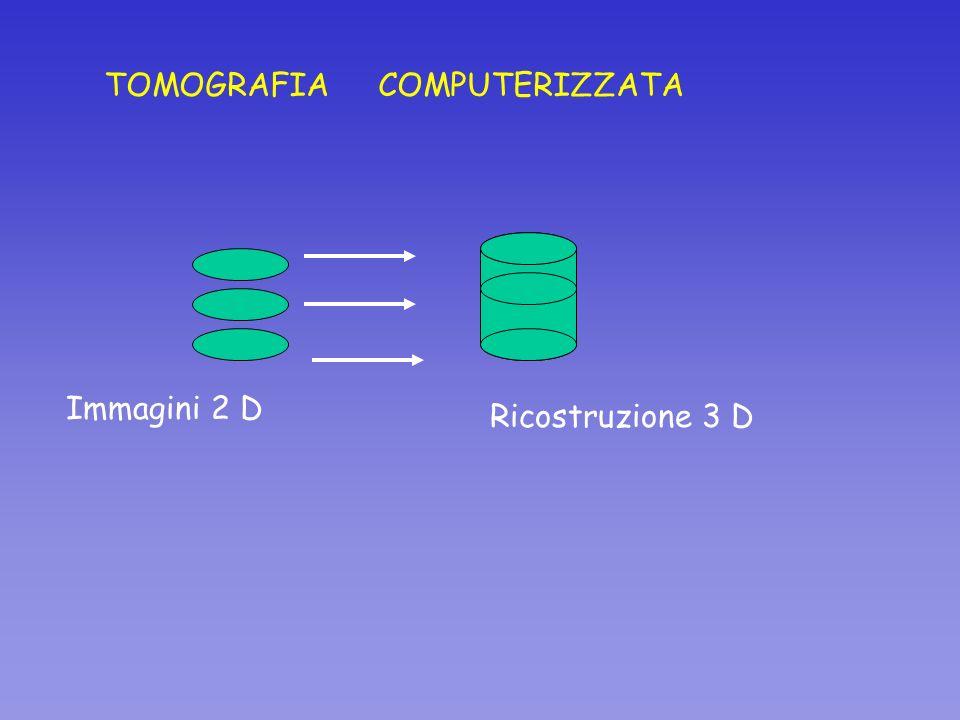 TOMOGRAFIA COMPUTERIZZATA Ricostruzione 3 D Immagini 2 D