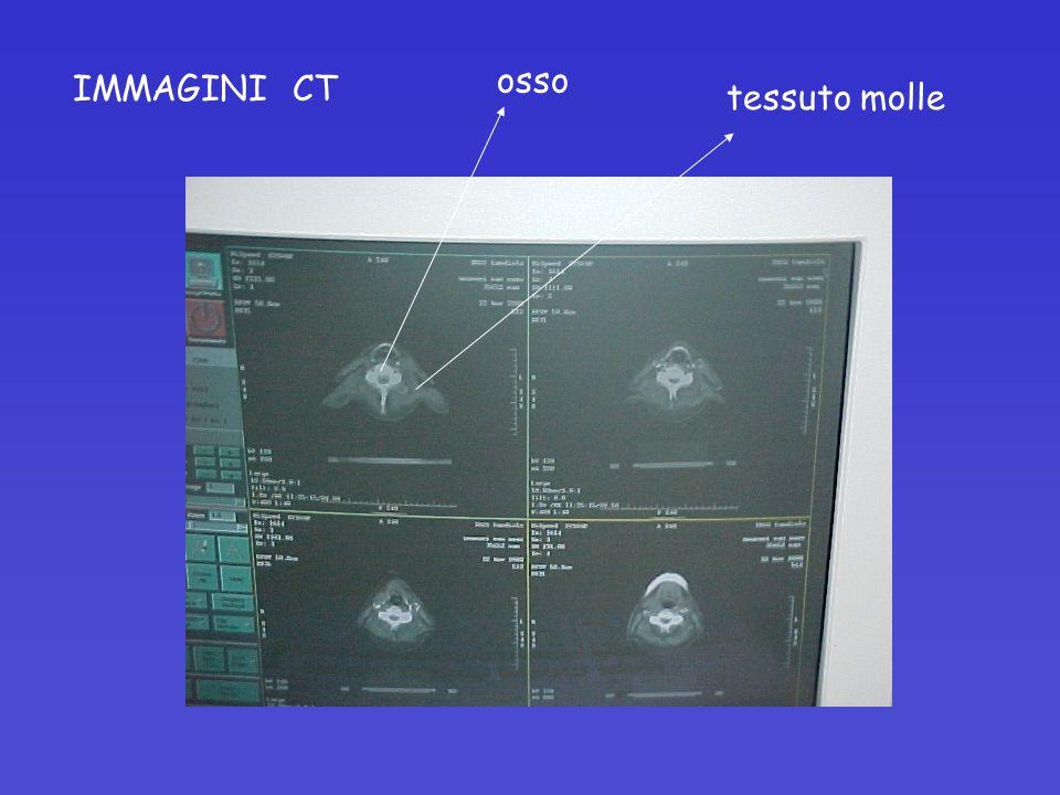 IMMAGINI CT osso tessuto molle