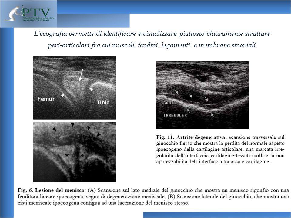 L'ecografia permette di identificare e visualizzare piuttosto chiaramente strutture peri-articolari fra cui muscoli, tendini, legamenti, e membrane si