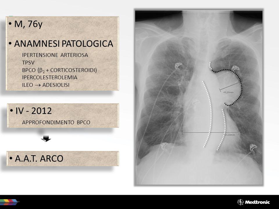 M, 76y ANAMNESI PATOLOGICA IPERTENSIONE ARTERIOSA TPSV BPCO ( 2 + CORTICOSTEROIDI) IPERCOLESTEROLEMIA ILEO ADESIOLISI M, 76y ANAMNESI PATOLOGICA IPERT