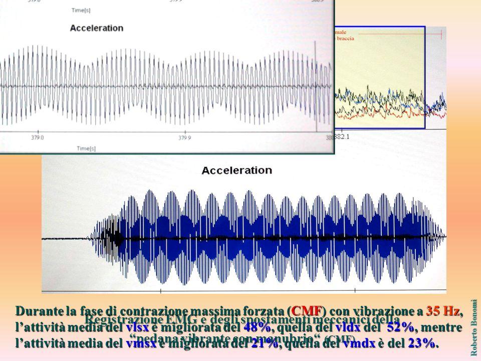 Registrazione EMG e degli spostamenti meccanici della pedana vibrante con manubrio (CMF) Contrazione Massima Forzata (CMF) Roberto Bonomi Durante la fase di contrazione massima forzata (CMF) con vibrazione a 35 Hz, lattività media del vlsx è migliorata del 48%, quella del vldx del 52%, mentre lattività media del vmsx è migliorata del 21%, quella del vmdx è del 23%.