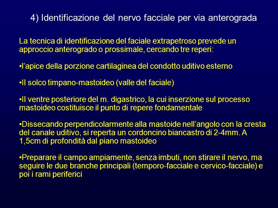 La tecnica di identificazione del faciale extrapetroso prevede un approccio anterogrado o prossimale, cercando tre reperi: lapice della porzione carti