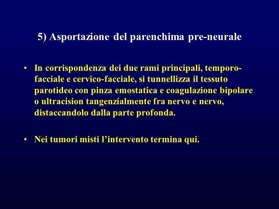 5) Asportazione del parenchima pre-neurale In corrispondenza dei due rami principali, temporo- facciale e cervico-facciale, si tunnellizza il tessuto