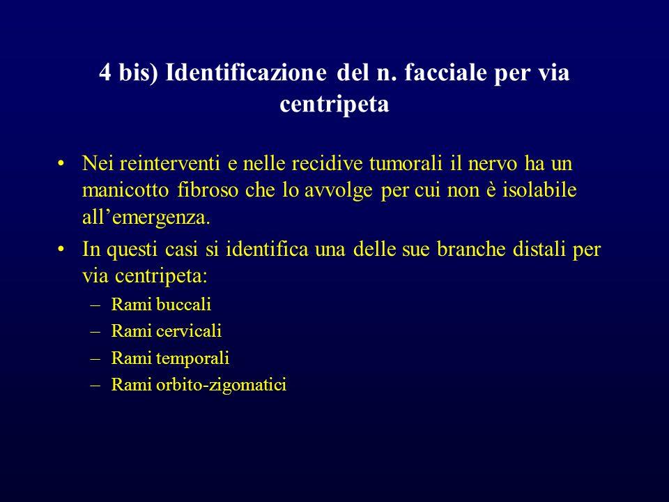 4 bis) Identificazione del n. facciale per via centripeta Nei reinterventi e nelle recidive tumorali il nervo ha un manicotto fibroso che lo avvolge p
