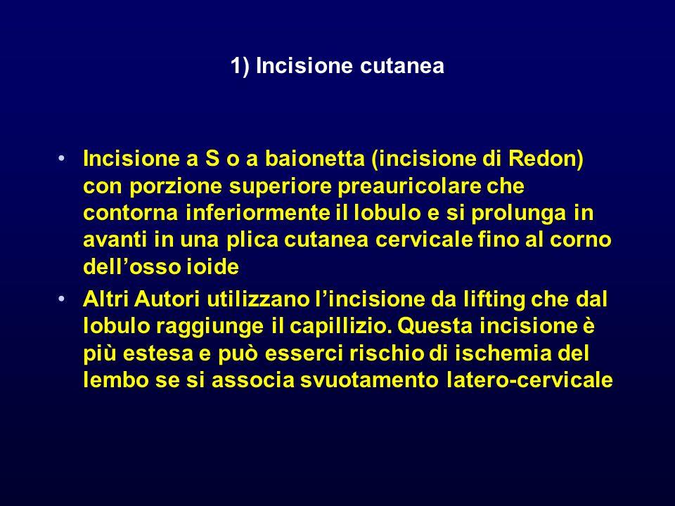 1) Incisione cutanea Incisione a S o a baionetta (incisione di Redon) con porzione superiore preauricolare che contorna inferiormente il lobulo e si p