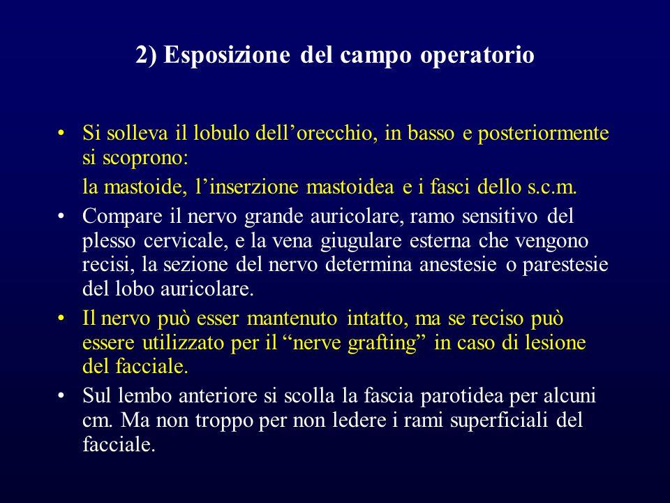 2) Esposizione del campo operatorio Si solleva il lobulo dellorecchio, in basso e posteriormente si scoprono: la mastoide, linserzione mastoidea e i fasci dello s.c.m.