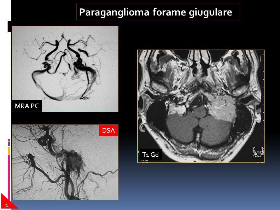 Paraganglioma forame giugulare 1 T1 Gd MRA PC DSA