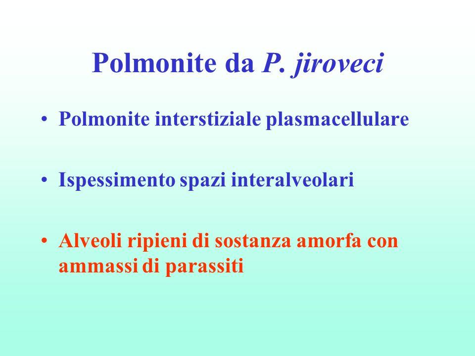 Polmonite interstiziale plasmacellulare Ispessimento spazi interalveolari Alveoli ripieni di sostanza amorfa con ammassi di parassiti