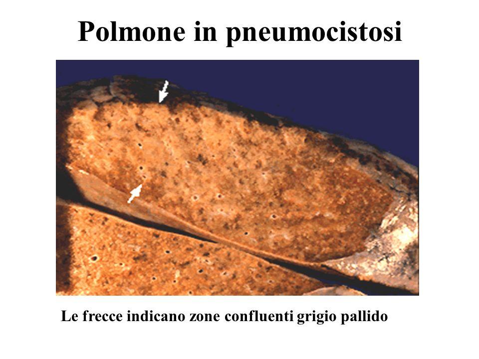Polmone in pneumocistosi Le frecce indicano zone confluenti grigio pallido
