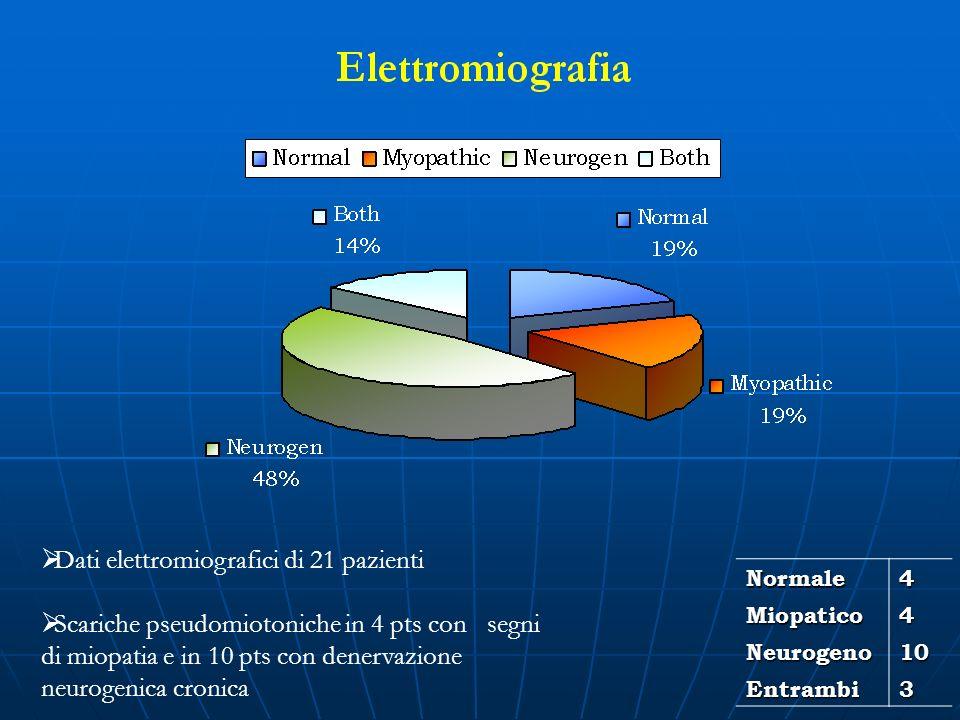 Dati elettromiografici di 21 pazienti Scariche pseudomiotoniche in 4 pts con segni di miopatia e in 10 pts con denervazione neurogenica cronicaNormale