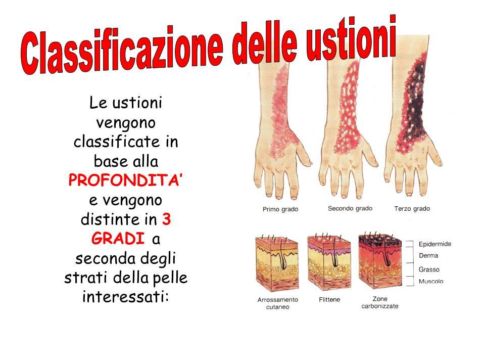Le ustioni vengono classificate in base alla PROFONDITA e vengono distinte in 3 GRADI a seconda degli strati della pelle interessati: