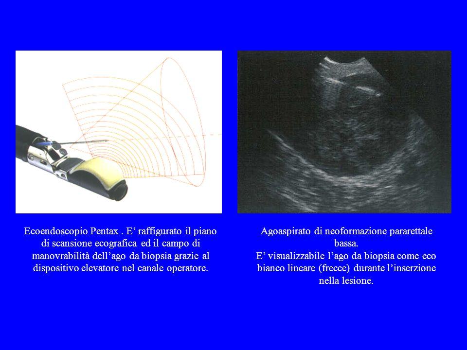 Ecoendoscopio Pentax. E raffigurato il piano di scansione ecografica ed il campo di manovrabilità dellago da biopsia grazie al dispositivo elevatore n