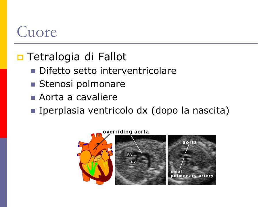 Cuore Tetralogia di Fallot Difetto setto interventricolare Stenosi polmonare Aorta a cavaliere Iperplasia ventricolo dx (dopo la nascita)