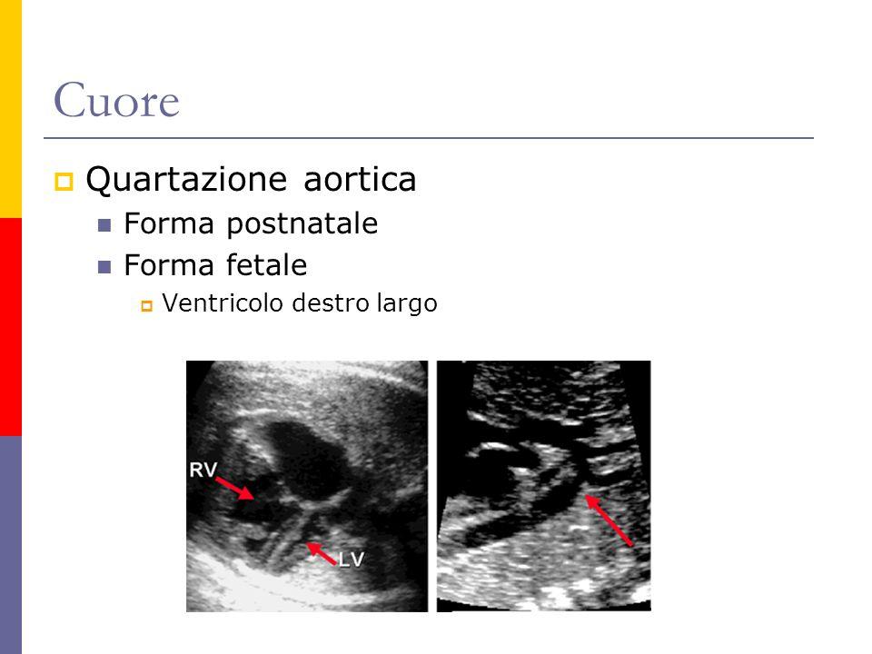 Cuore Quartazione aortica Forma postnatale Forma fetale Ventricolo destro largo