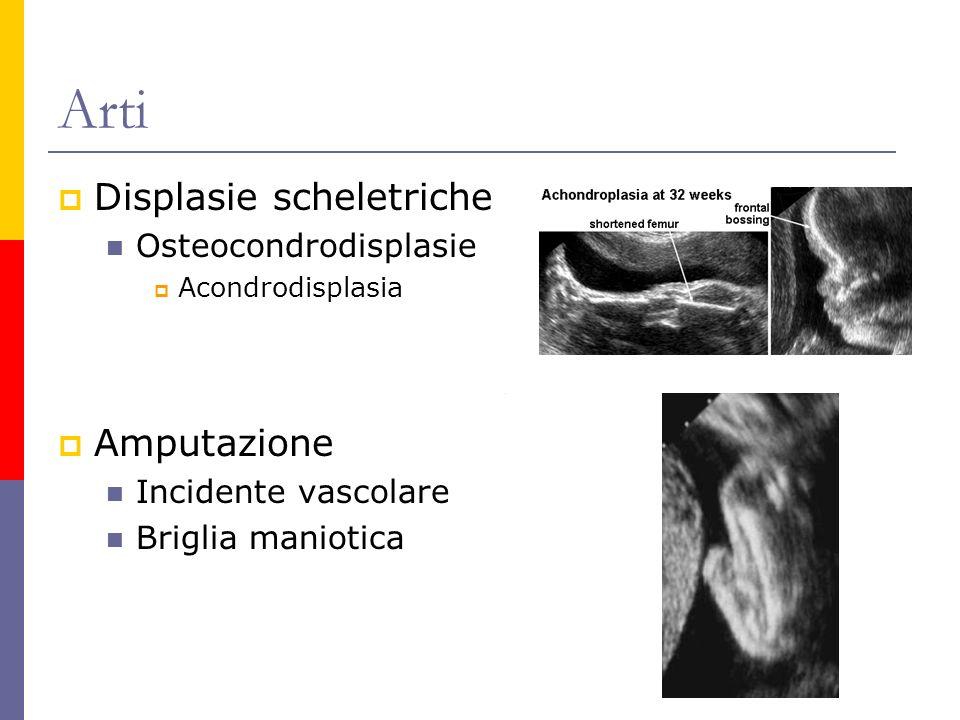 Arti Displasie scheletriche Osteocondrodisplasie Acondrodisplasia Amputazione Incidente vascolare Briglia maniotica