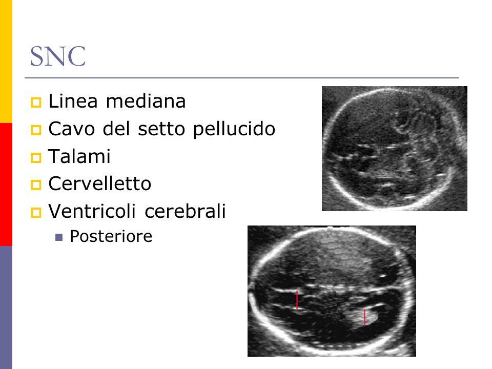 SNC Linea mediana Cavo del setto pellucido Talami Cervelletto Ventricoli cerebrali Posteriore