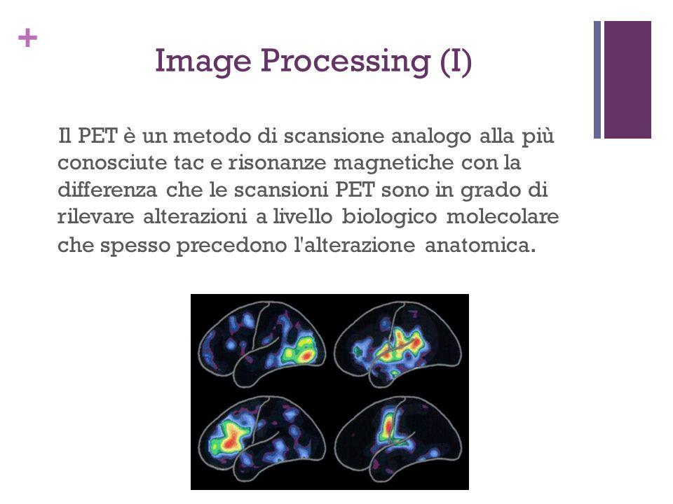 + Image Processing (I) Il PET è un metodo di scansione analogo alla più conosciute tac e risonanze magnetiche con la differenza che le scansioni PET s