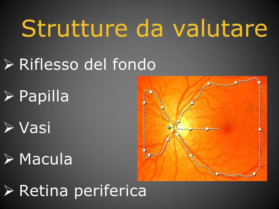 Strutture da valutare Riflesso del fondo Papilla Vasi Macula Retina periferica