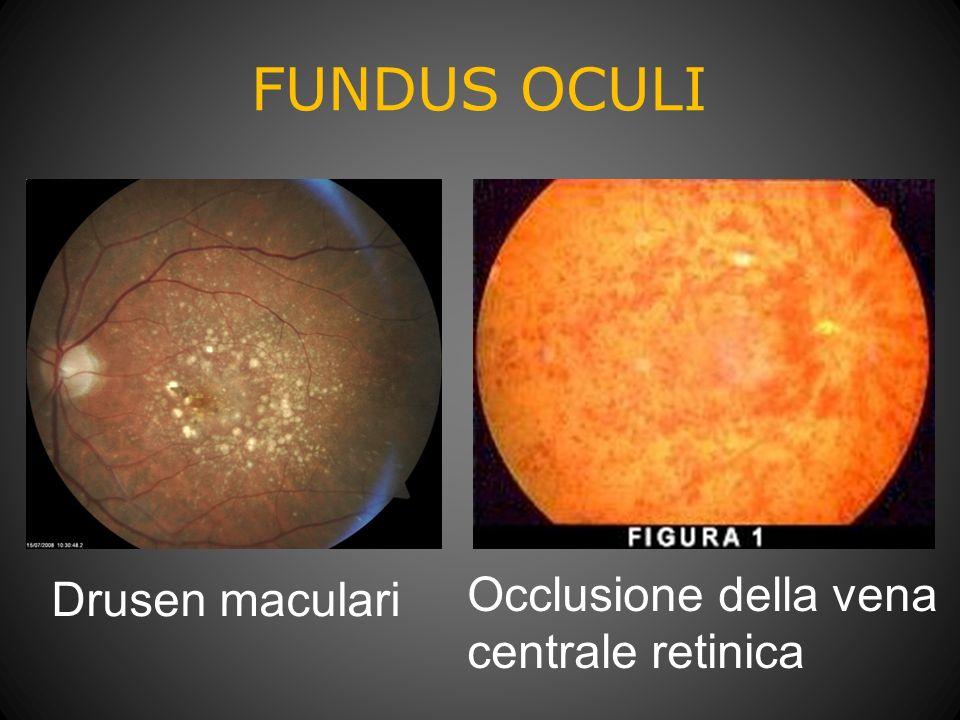 FUNDUS OCULI Drusen maculari Occlusione della vena centrale retinica