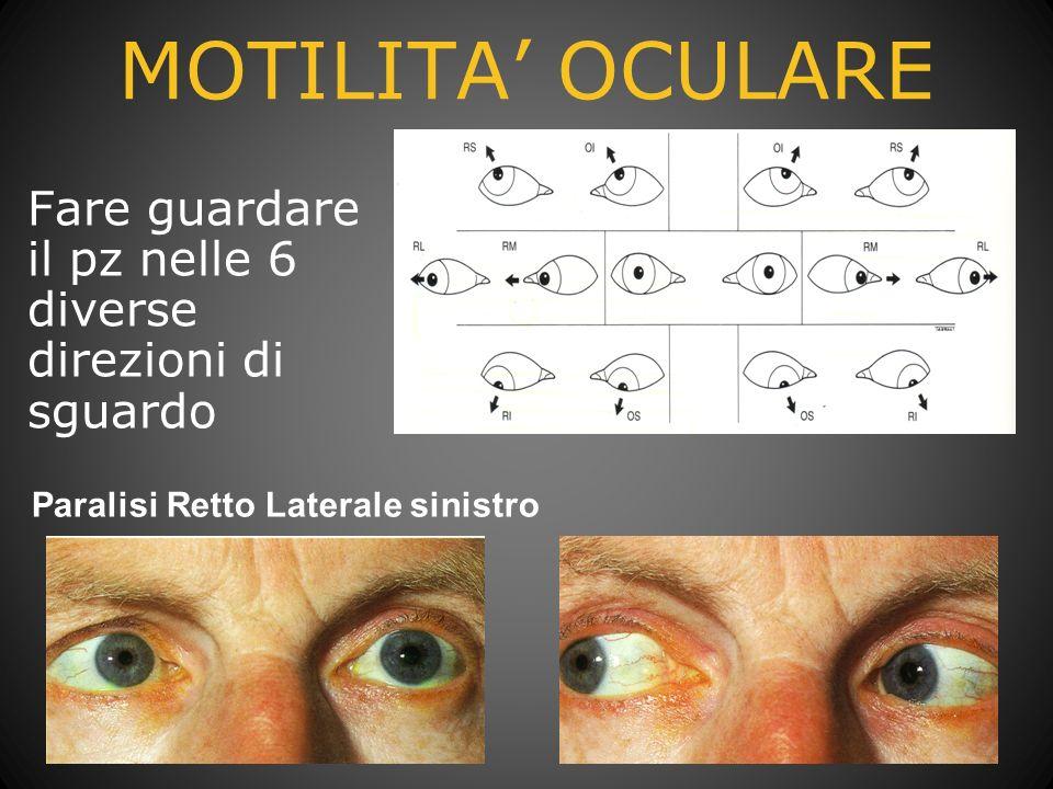 MOTILITA OCULARE Fare guardare il pz nelle 6 diverse direzioni di sguardo Paralisi Retto Laterale sinistro