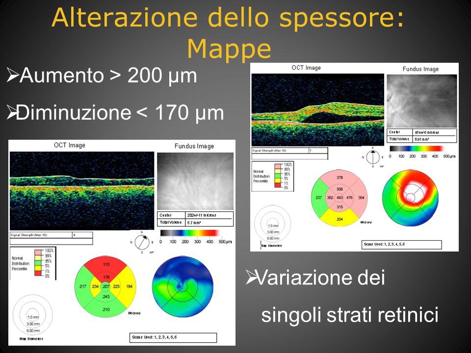 Alterazione dello spessore: Mappe Aumento > 200 µm Diminuzione < 170 µm Variazione dei singoli strati retinici