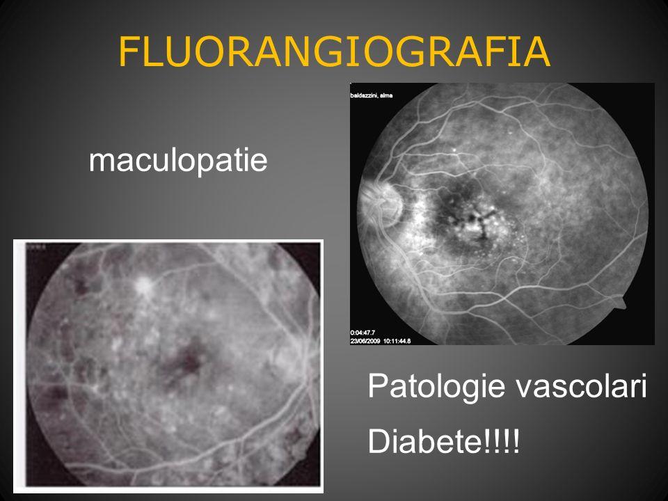 FLUORANGIOGRAFIA maculopatie Patologie vascolari Diabete!!!!