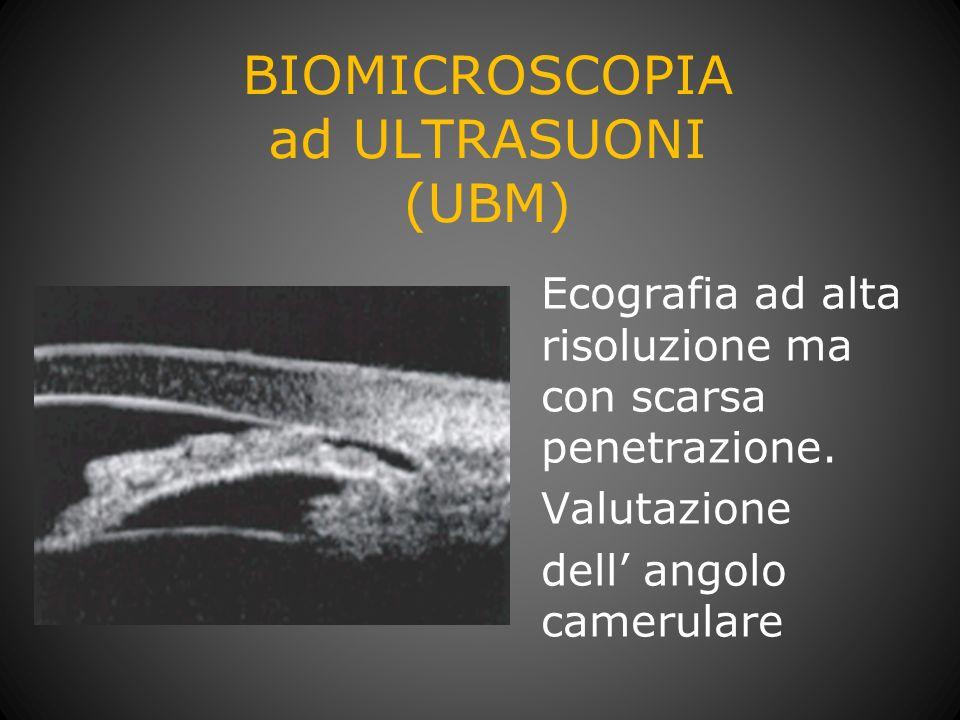 BIOMICROSCOPIA ad ULTRASUONI (UBM) Ecografia ad alta risoluzione ma con scarsa penetrazione. Valutazione dell angolo camerulare