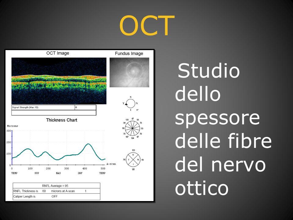 OCT Studio dello spessore delle fibre del nervo ottico