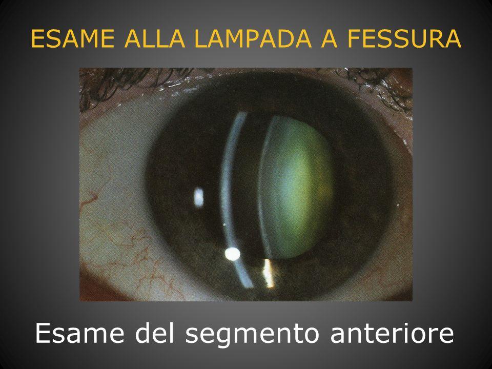 TOMOGRAFIA A COERENZA OTTICA (OCT) Visione della morfologia retinica Quantificazione delle alterazioni Diagnosi Evoluzione della patologia