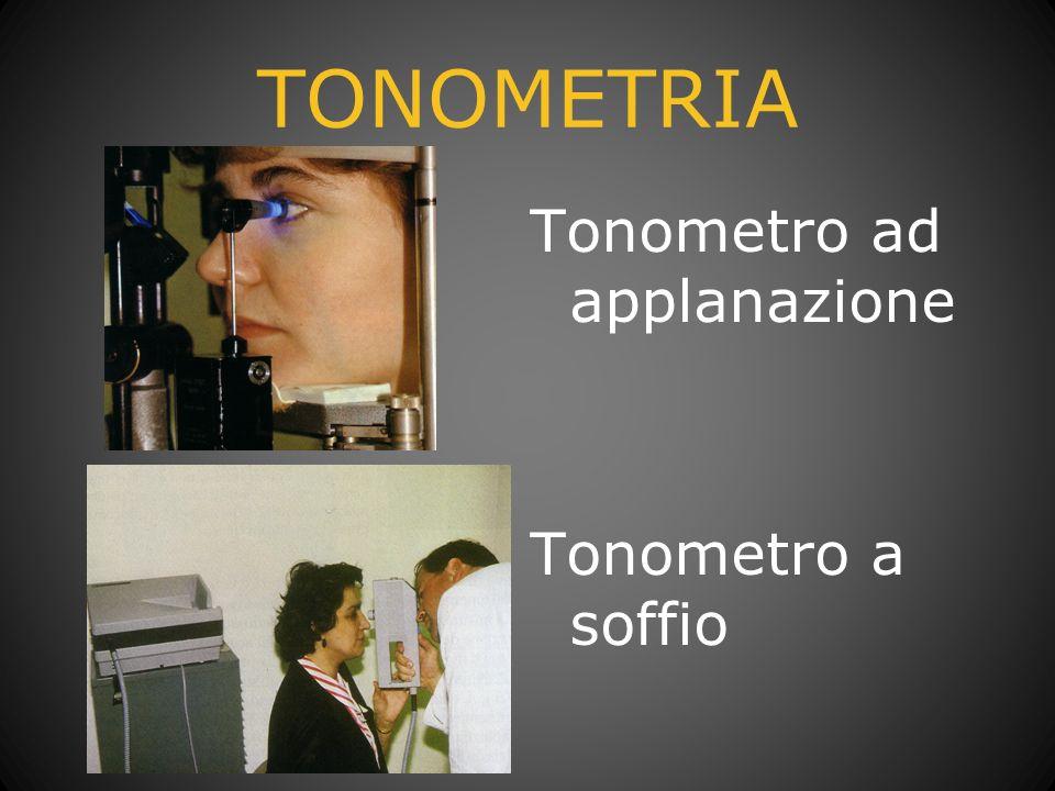 OFTALMOSCOPIA Dilatazione: Fenilefrina Tropicamide 0.5% Tropicamide 1% La dilatazione viene valutata a seconda dei casi dall oculista Sempre in diabetici ed ipertesi nel dubbio venire accompagnati e con occhiali da sole