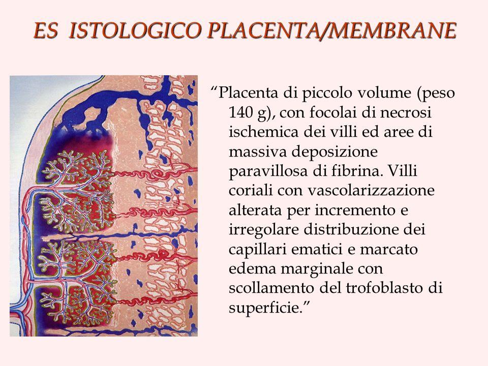 ES ISTOLOGICO PLACENTA/MEMBRANE Placenta di piccolo volume (peso 140 g), con focolai di necrosi ischemica dei villi ed aree di massiva deposizione paravillosa di fibrina.