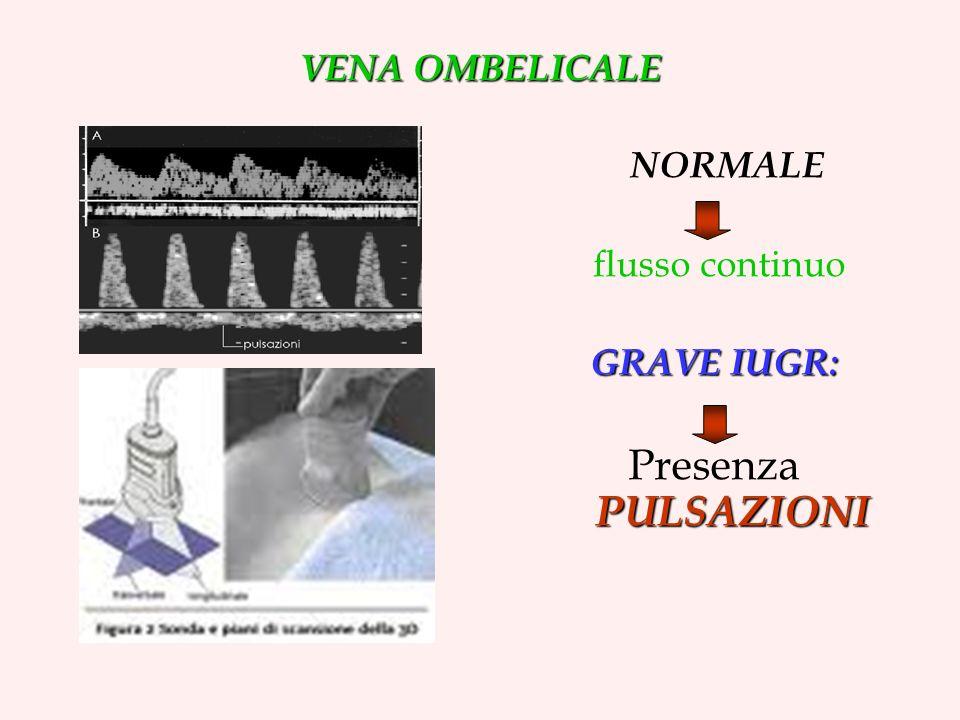VENA OMBELICALE NORMALE flusso continuo GRAVE IUGR: PULSAZIONI Presenza PULSAZIONI