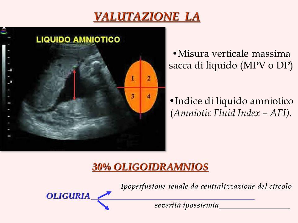 VALUTAZIONE LA Misura verticale massima sacca di liquido (MPV o DP) Indice di liquido amniotico ( Amniotic Fluid Index – AFI).