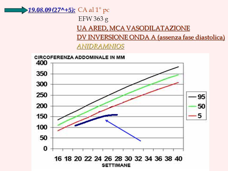 19.08.09 (27^+5): 19.08.09 (27^+5): CA al 1° pc EFW 363 g UA ARED, MCA VASODILATAZIONE DV INVERSIONE ONDA A (assenza fase diastolica) DV INVERSIONE ONDA A (assenza fase diastolica) ANIDRAMNIOS