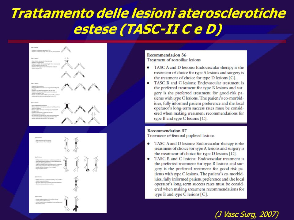 Trattamento delle lesioni aterosclerotiche estese (TASC-II C e D) (J Vasc Surg, 2007)