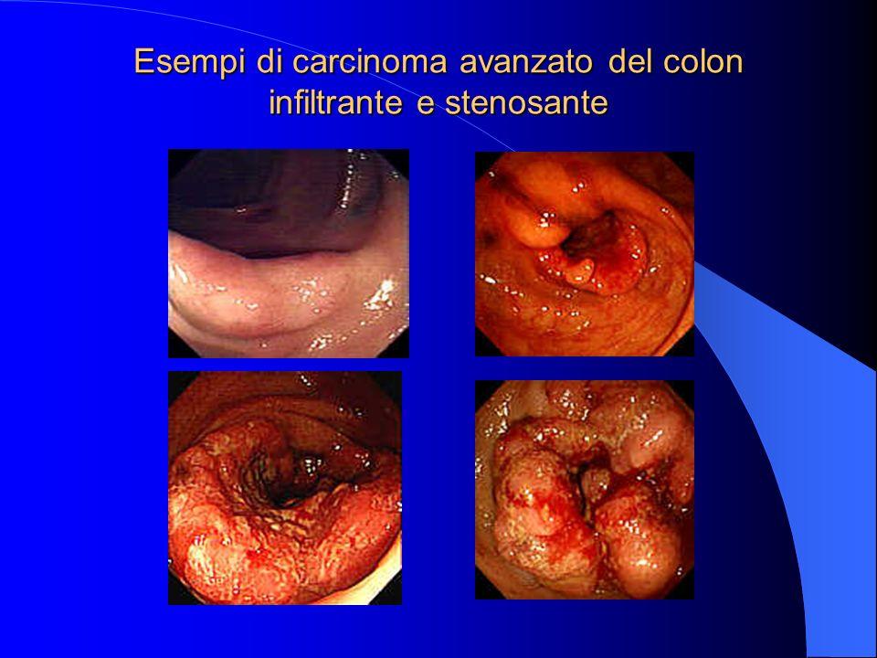 Esempi di carcinoma ulcerato avanzato del colon