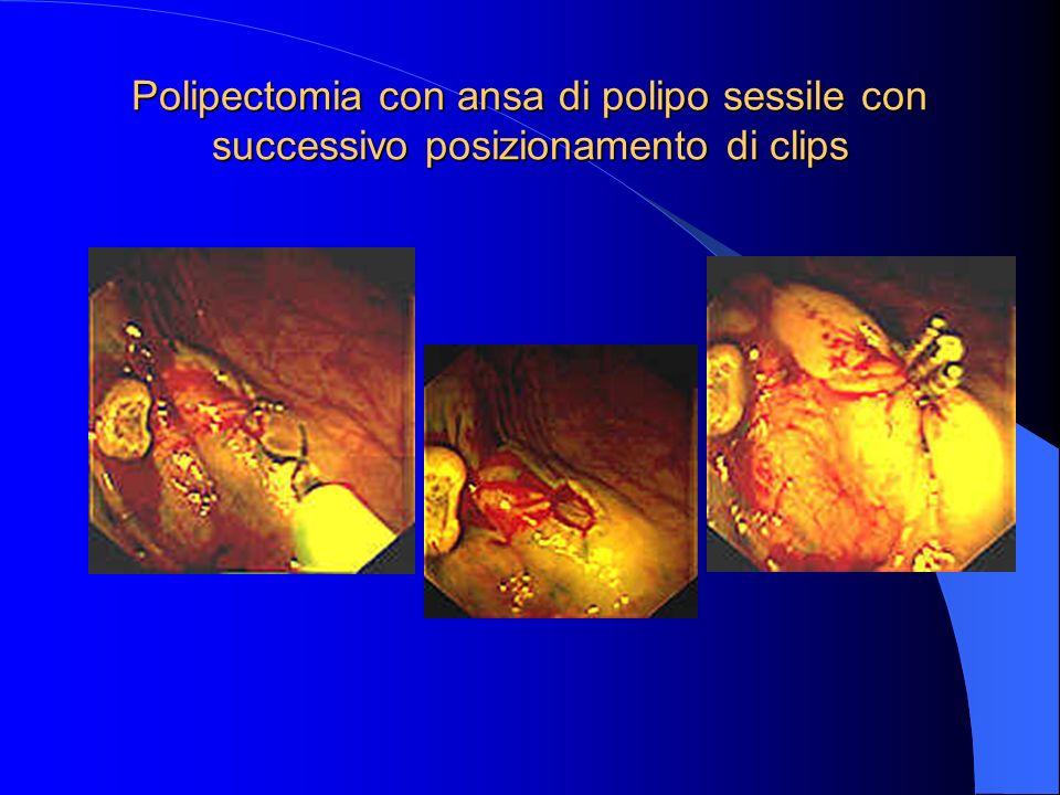 Polipectomia di polipo peduncolato con posizionamento di endo-loop