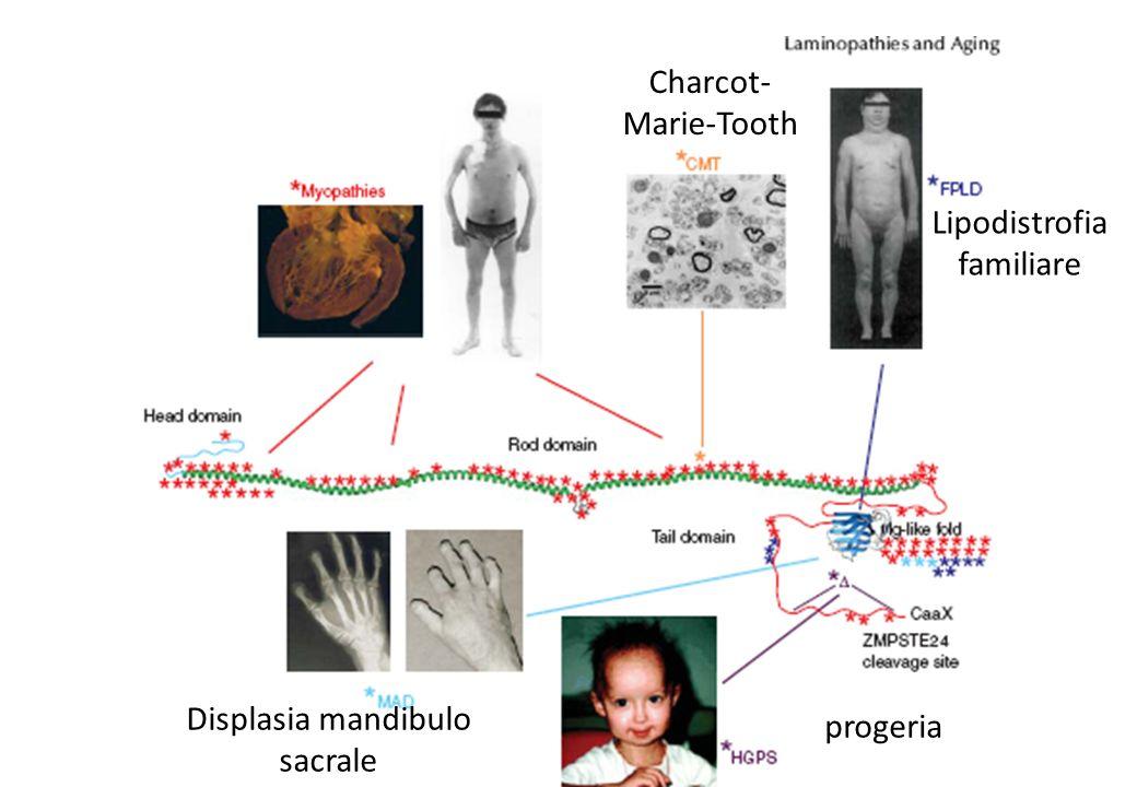 Lipodistrofia familiare Charcot- Marie-Tooth progeria Displasia mandibulo sacrale
