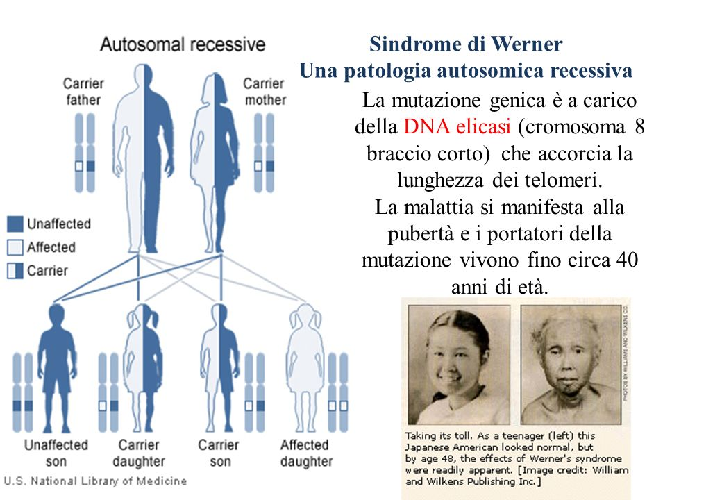 Sindrome di Werner Una patologia autosomica recessiva La mutazione genica è a carico della DNA elicasi (cromosoma 8 braccio corto) che accorcia la lunghezza dei telomeri.