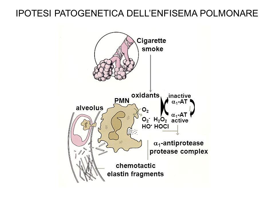 IPOTESI PATOGENETICA DELLENFISEMA POLMONARE Cigarette smoke oxidants 1 -antiprotease protease complex chemotactic elastin fragments O2O2 O 2 - H 2 O 2 HO HOCl inactive 1 -AT active alveolus PMN