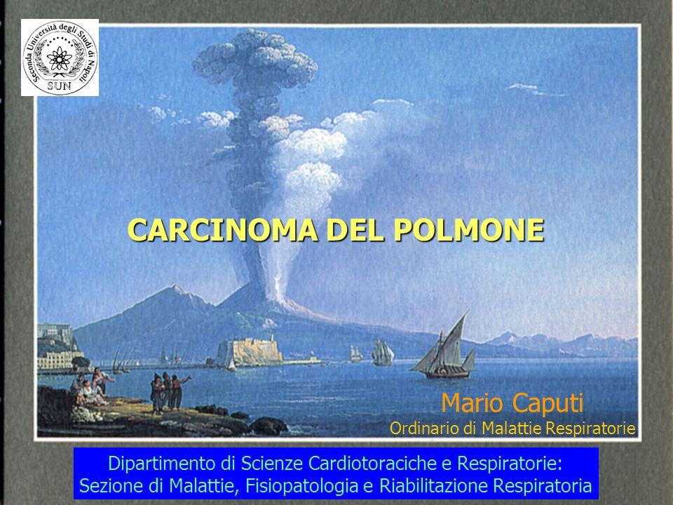 CARCINOMA DEL POLMONE Mario Caputi Ordinario di Malattie Respiratorie Dipartimento di Scienze Cardiotoraciche e Respiratorie: Sezione di Malattie, Fisiopatologia e Riabilitazione Respiratoria