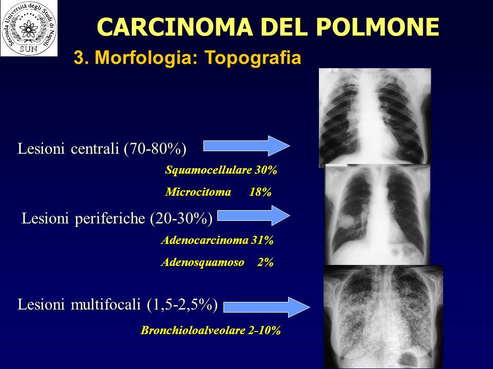Lesioni centrali (70-80%) Lesioni periferiche (20-30%) Lesioni multifocali (1,5-2,5%) Adenocarcinoma 31% Adenosquamoso 2% Squamocellulare 30% Microcitoma 18% Bronchioloalveolare 2-10% CARCINOMA DEL POLMONE 3.
