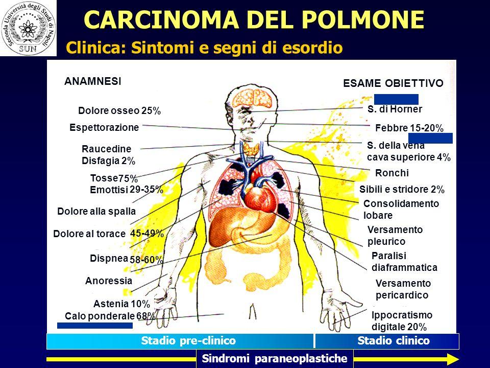 Espettorazione Raucedine Disfagia 2% Tosse Emottisi Dolore alla spalla Dolore al torace Dispnea Anoressia Astenia 10% Calo ponderale ANAMNESI ESAME OBIETTIVO S.