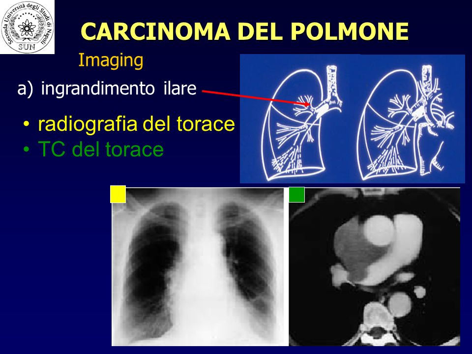 radiografia del torace TC del torace a) a) ingrandimento ilare Imaging CARCINOMA DEL POLMONE